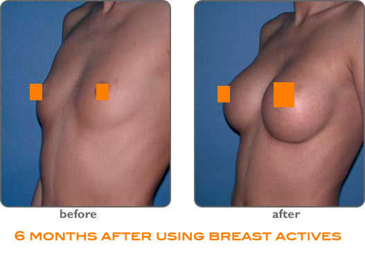 Breast Actives Before And After Home